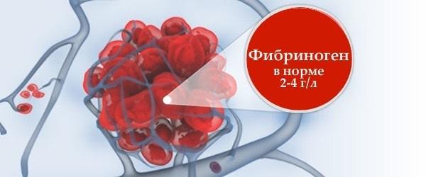 Анализ крови на фибриноген
