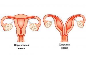 Двурогая матка и беременность у женщин: что это такое, причины и лечение