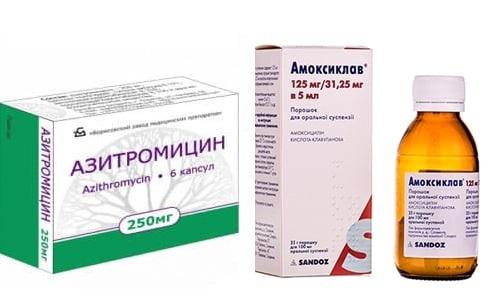 АМОКСИКЛАВ или АЗИТРОМИЦИН: что лучше и в чем разница (отличия составов, отзывы врачей)