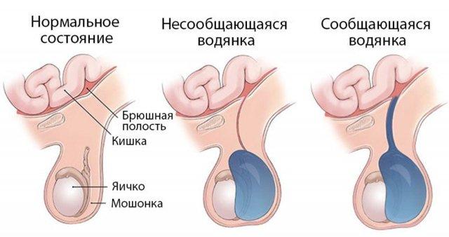 Опухли яички и болят у мужчины лечение