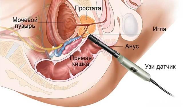 Биопсия предстательной железы: показания, способы, подготовка, ход процедуры, результаты, последствия и осложнения, рекомендации после анализа