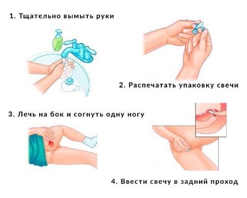 Свечи при воспалении женских органов (придатков, яичников, матки): какие выбрать для лечения?