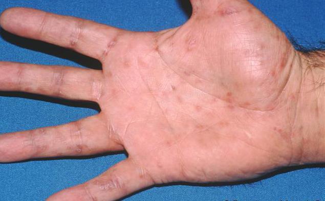 Сифилитическая сыпь: симптомы высыпаний у мужчин и женщин