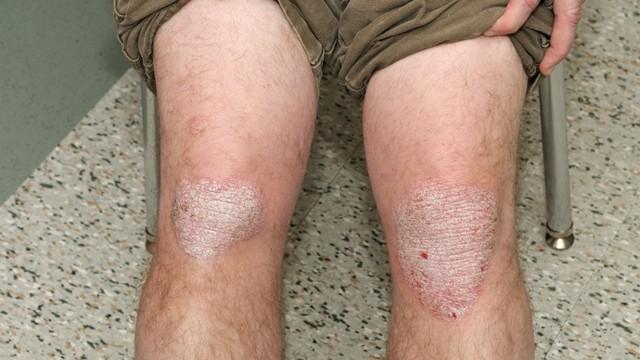 Чем лечить псориаз на теле и ногах