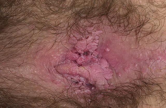 Остроконечные кондиломы у женщин: причины, симптомы, лечение