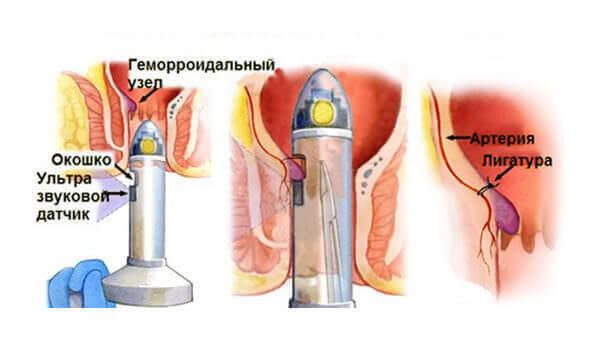 Какой врач лечит геморрой (у женщин, мужчин, детей): к какому доктору обращаться в поликлинике, если нет проктолога