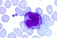 Моноциты в анализе крови