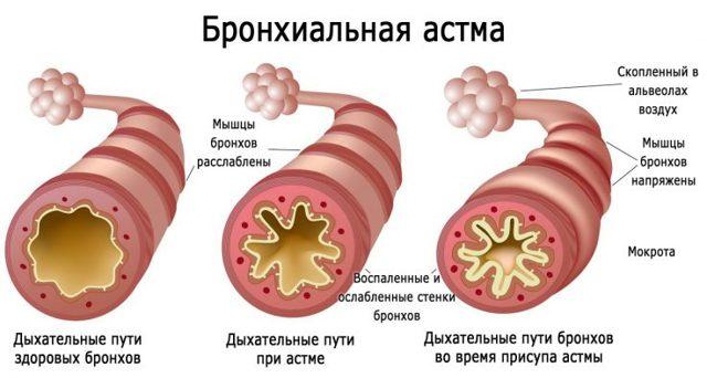 Лечение необструктивного бронхита