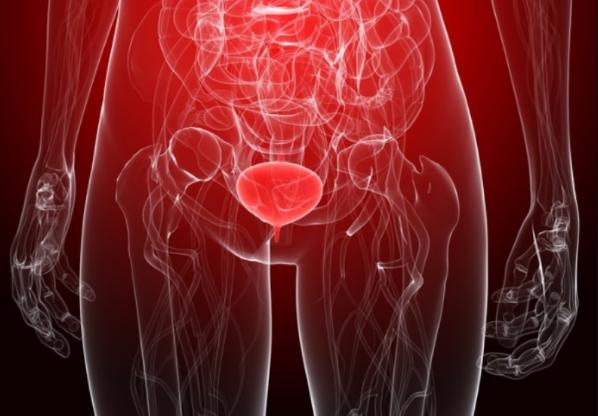 Метаплазия мочевого пузыря лечение