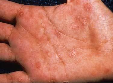Герпес на руках, пальцах рук: причины и лечение