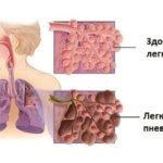 Кандидоз легких: причины, симптомы, схема лечения