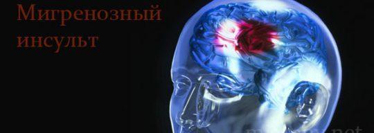 Чем опасна мигрень и мигренозный инсульт: последствия, симптомы