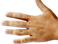 Как вывести (удалить, убрать) шипицу на пальце ноги, ступне в домашних условиях