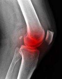 Рак костей: симптомы и проявления, лечение, диагностика (видео)