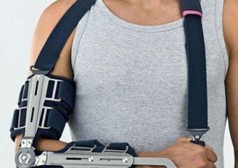 Перелом лучевой кости руки: со смещением и без, сколько носить гипс, лечение, как разработать после, срок срастания, упражнения, реабилитация