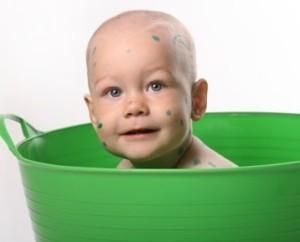 Можно ли купать ребенка при ветрянке: 8 советов от педиатра