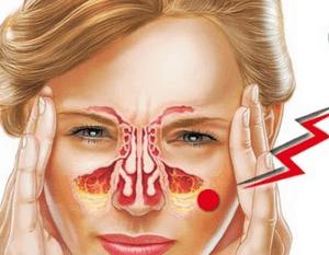 Как проявляется гайморит у взрослых: симптомы