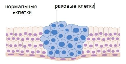 Меланома: лечение, профилактика, иммунотерапия