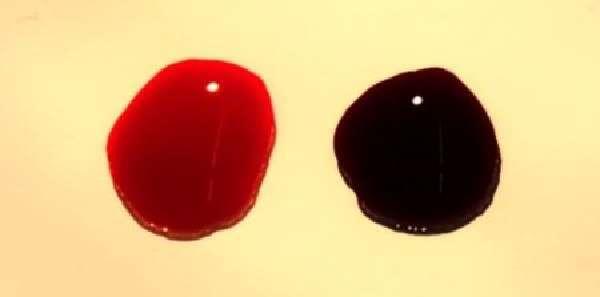 Кровь на туалетной бумаге после опорожнения: основные причины и лечение