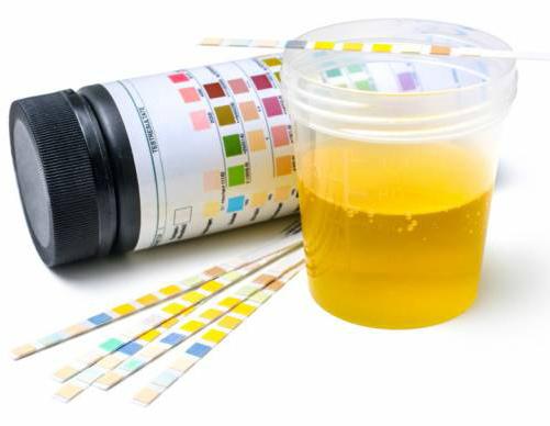 Синдромокомплекс почечного диабета: формы развития, диагностика и лечение