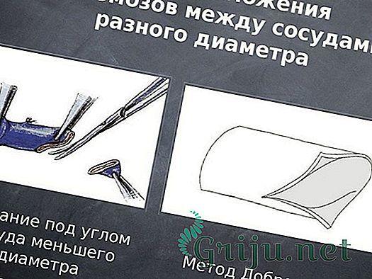 Операция бедренной грыжи, способы лечения и пластика