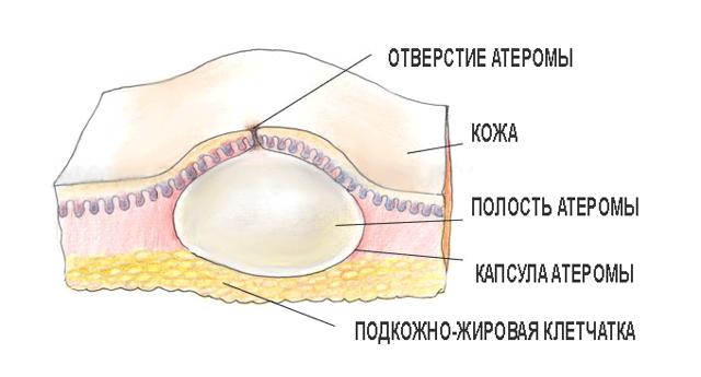 Появилась шишка в паху у женщин и мужчин (уплотнение) под кожей: что делать?