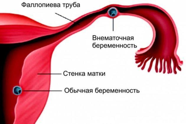 Выделения в середине цикла у женщин (коричневые, кровянистые, мажущие) без запаха и боли