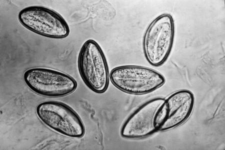 Яйца глистов: как выглядят?