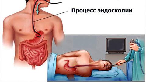 Эндоскопия желудка
