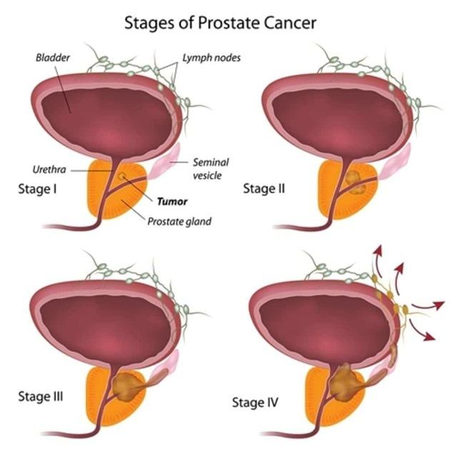 Рак простаты 1,2,3,4 степени: продолжительность жизни, прогноз, симптомы, лечение