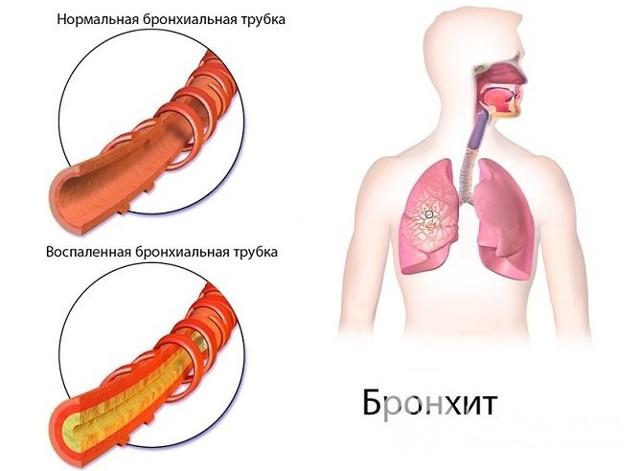 Осложнения гайморита у взрослых