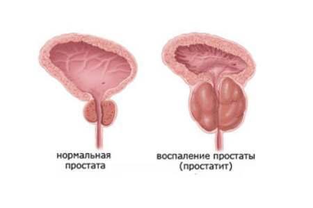 Виды простатита