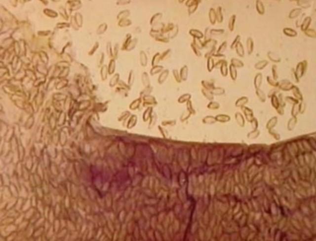 Яйца остриц: как выглядят острицы, жизненный цикл развития
