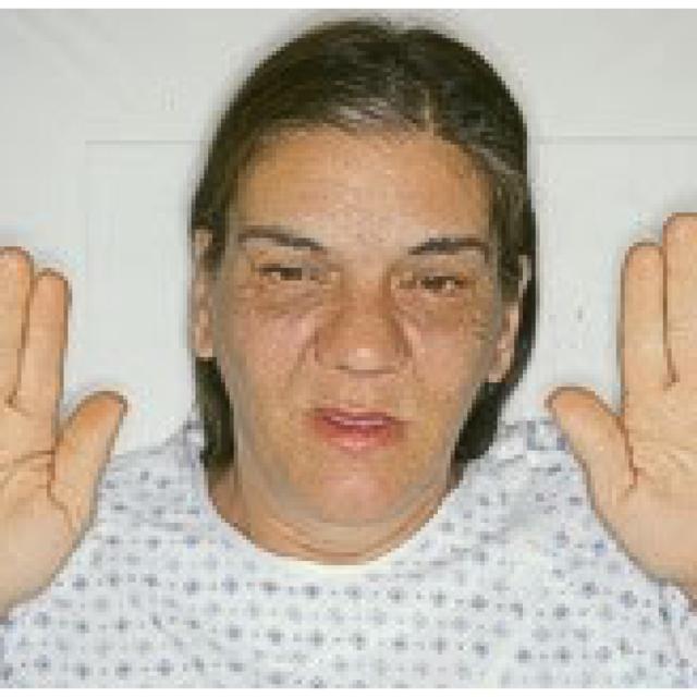 Симптомы опухоли гипофиза у женщин и мужчин: что это такое ?