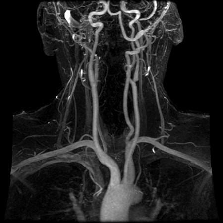 Что показывает МРТ головного мозга и сосудов шеи ?