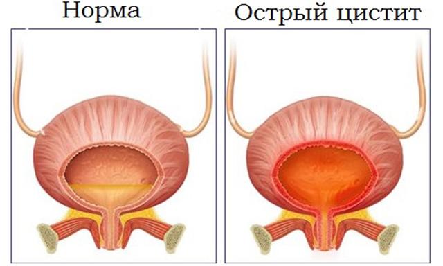 Ванночки с ромашкой и рецепты дя приема внутрь для лечения цистита у женщин
