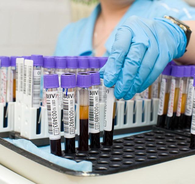 Пиелокаликоэктазия почек: признаки, диагностика, лечение