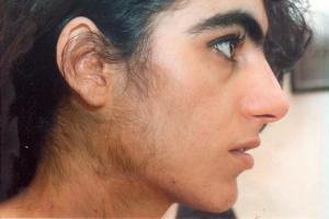 17-Оh прогестерон повышен: норма у женщин, лечение