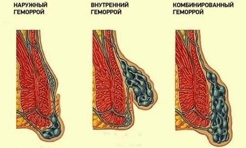 Комбинированный геморрой (смешанный): 1, 2, 3 степени, лечение, операция, код МКБ 10