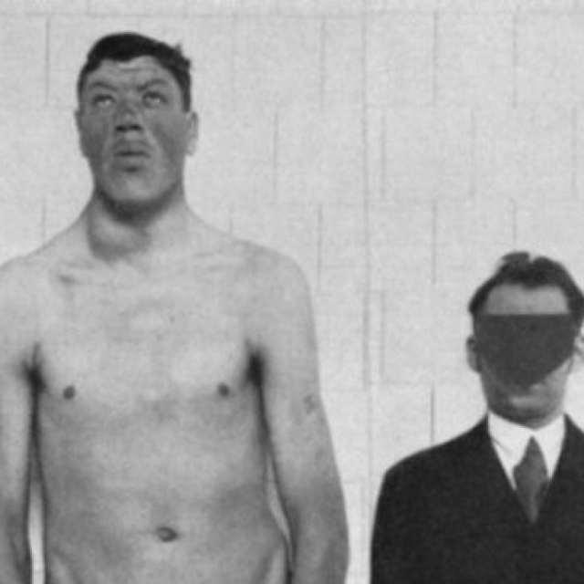 Акромегалия: причины и симптомы болезни