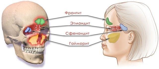 Сфеноидит у взрослых: что это такое, симптомы и лечение