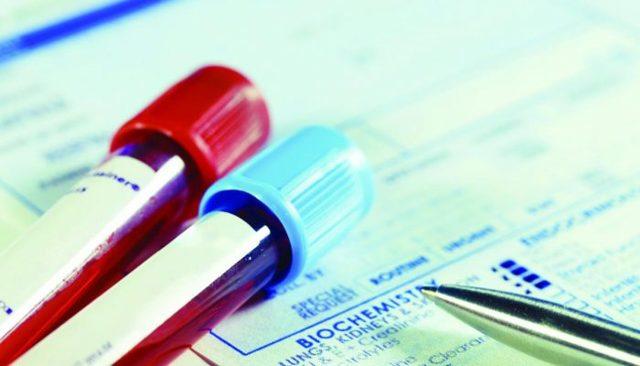 Анализ крови СА–125 у женщин при кисте, эндометриозе: что означает, норма