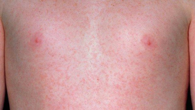 Красные (кровяные) мелкие точки на коже тела: что это, причины появления