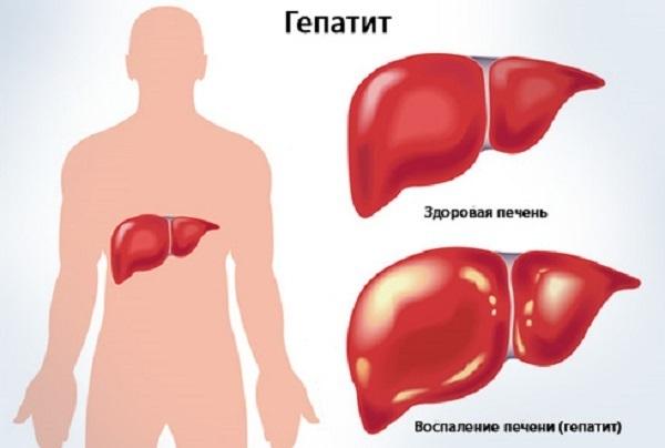 Вирусная нагрузка при гепатите С и В: понятие о норме и патологии