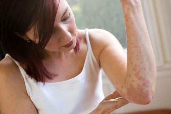 Аллергическая крапивница, как лечить острую крапивницу