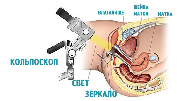 Дрожжевой кольпит: причины, симптомы и лечение