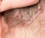 Сантонин от паразитов: инструкция и отзывы