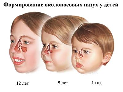 Синусит у детей: симптомы и лечение