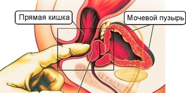 Массаж при геморрое (у женщин, у мужчин): как делать в домашних условиях, после операции (удаления), анальный массаж пальцем, точечный, видео