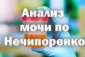 Анализ мочи по Нечипоренко: нормы, расшифровка и сбор